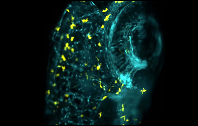 Microglia and vascular system of zebrafish imaged using light-sheet microscopy to track microglia movement.